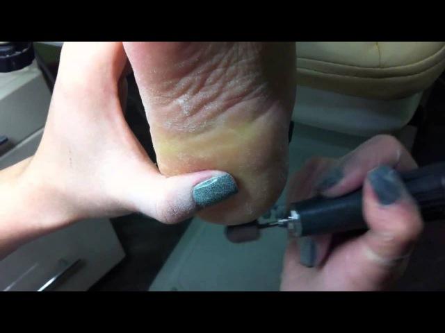 Pedicure cracks textbook Аппаратный педикюр трещины