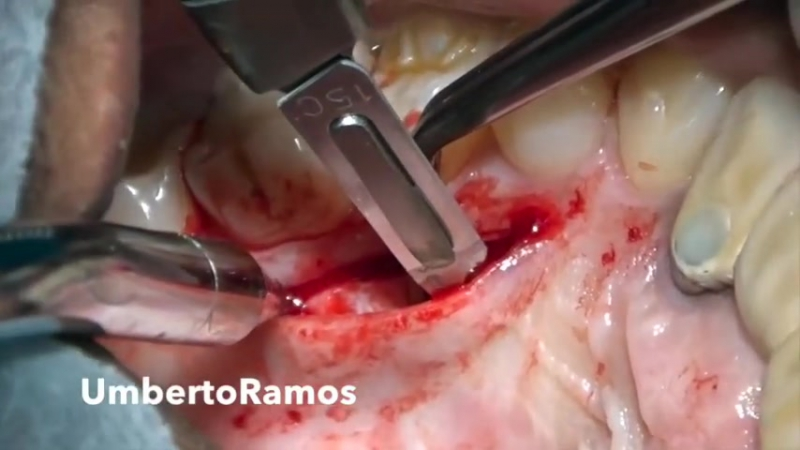 Harvesting Connective tissue graft from the Palate Single IncisionTechnique