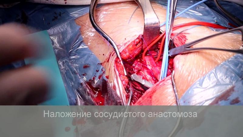 Операция׃ эверсионная каротидная эндартерэктомия слева