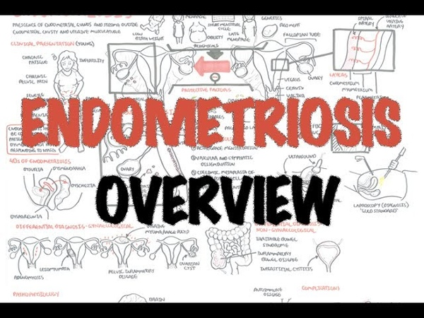 Endometriosis Overview pathophysiology differential diagnosis investigations and treatment