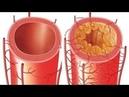 Единственный способ чистки сосудов артерий и вен