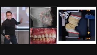 Часть 2. Зачем ТРГ врачу-стоматологу?! ПРИКУС по ТРГ для определения групп риска пациентов!