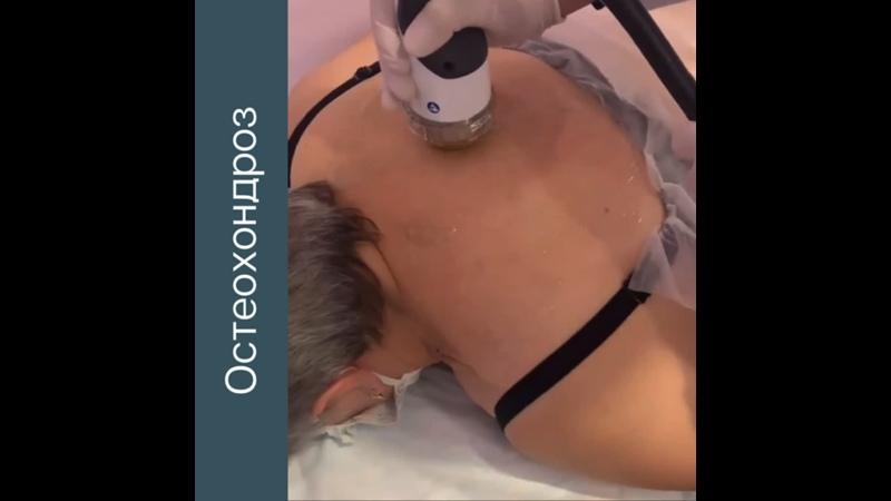 Ударно волновая терапия при остеохондрозе Центр красоты и здоровья Body Line