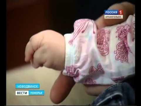 Маленькой жительнице Новодвинска срочно требуется помощь