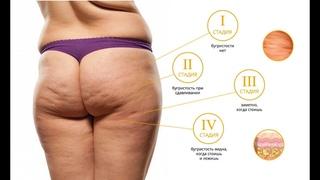 Целлюлит 1,2,3,4 стадии, внешние признаки, диагностика целлюлита. Массажист, антицеллюлитный массаж.